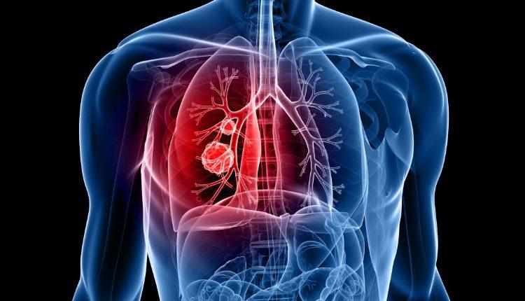 Desconhecimento sobre o cancro do pulmão atrasam diagnósticos